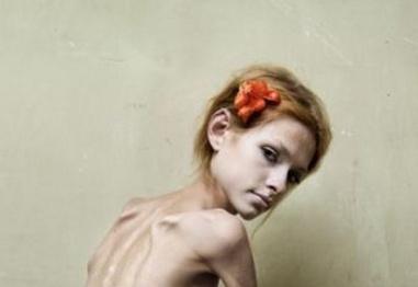 Анорексията – какво е важно да знаем?
