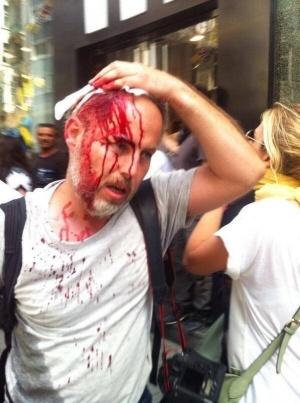 Зелените огранизират протест пред турското посолство
