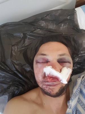 Журналист в Поморие пребит жестоко с бухалки
