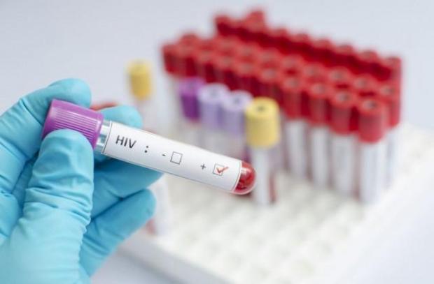 Осем са носителите на ХИВ-вируса в Русе. Правят безплатни тестове
