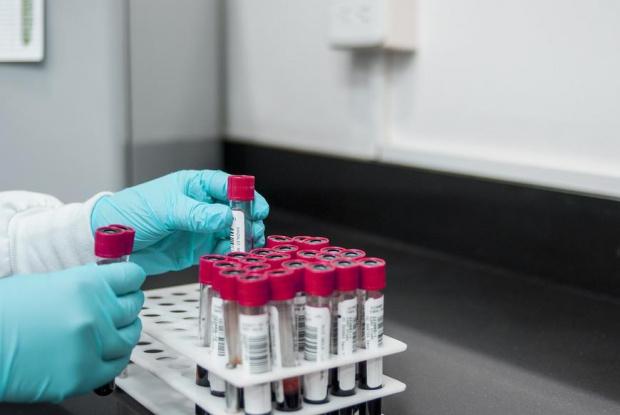 """Имунолог:  Най-малко след 1 година ще има ваксина, която да е """"достатъчно доказана със своята безвредност и достатъчно ефективна в епидемична ситуация"""