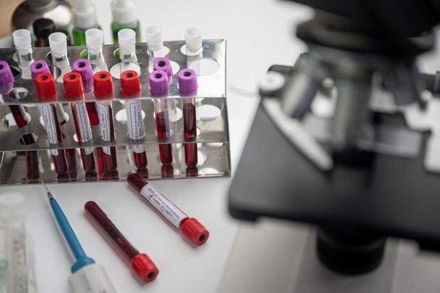 Участник в проучването за ваксина срещу коронавирус на AstraZeneca в