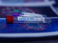 Франция въведе изискване за отрицателен PCR за всеки влизащ в страната европеец