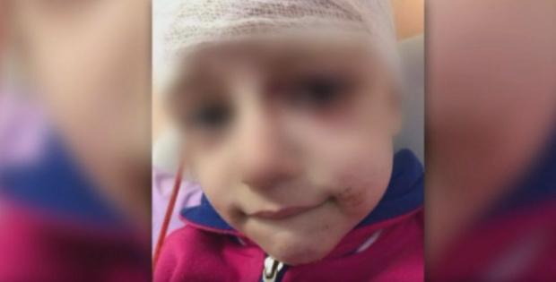 Питбул нахапа жестоко главата на 4-годишно детенце в София